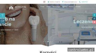 Implanty Katowice - Klinika Doktora Borczyka