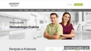 Chirurgia stomatologiczna Kraków | addent.pl
