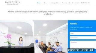 Dentysta stomatolog Kraków - Implantis